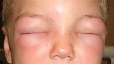 Illustration of Causes Of Swollen Face After Taking Blood-boosting Drugs?