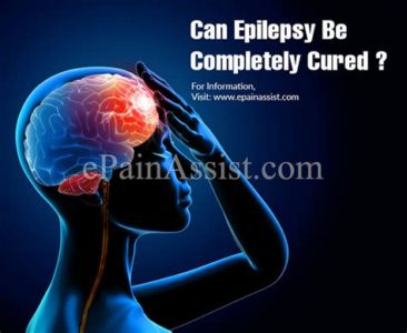 Illustration of Epilepsy Can Be Cured Completely?