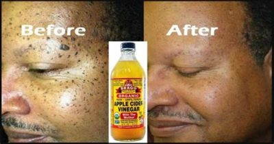 Illustration of Use Apple Cider Vinegar For Oily And Acne-prone Skin?