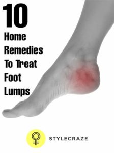 Illustration of Causes And Treats Lumps On The Feet?