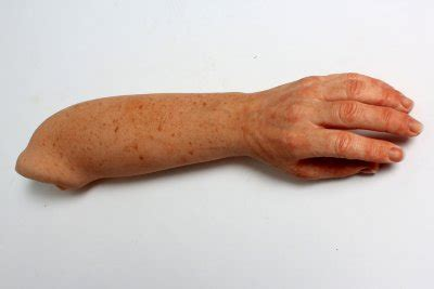 Illustration of Freckles On Hands And Feet?