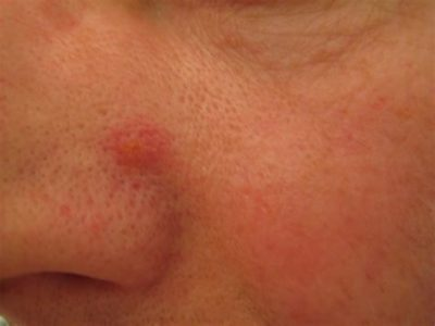 Illustration of Red Bumps On The Face That Hurt?