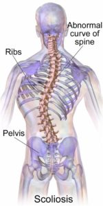 Illustration of Treatment Of Pain In The Spine In Patients With Scoliosis?