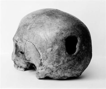 Illustration of The Skull With A Hole In The Head Due To An Accident?