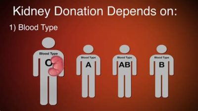 Illustration of Requirements For Donating A Kidney?