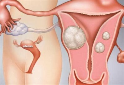 Illustration of Causes And Treats Pregnancy Outside The Womb?