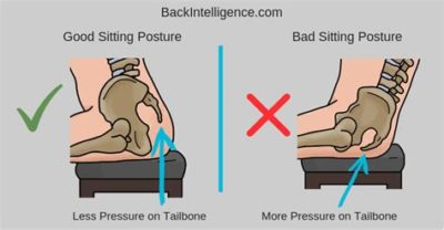 Illustration of Pain In The Tailbone After Falling In A Sitting Position?