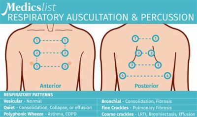 Illustration of Breath Sounds On Lung Examination?