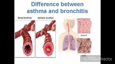 Illustration of Difference Between Asthma & Bronchitis / COPD?