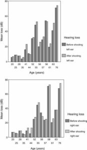 Illustration of Overcoming Hearing Loss In The Left Ear And Ringing In The Right Ear?