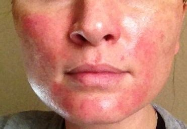 Illustration of Facial Skin Becomes Red And Sore After Peeling?