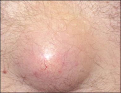 Illustration of Flesh Grows In The Middle Of The Breast Area?