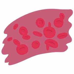 Illustration of Can People With Polycythemia Vera Still Donate Blood?