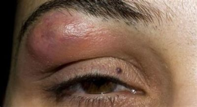 Illustration of The Lump Has Gotten Bigger Above The Eyebrow For 3 Weeks And The Headache Doesn't Go Away?