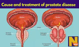 Illustration of Prohibition And Treatment Of Prostate Disease?