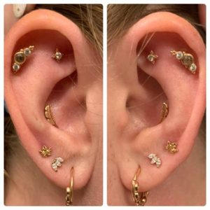 Illustration of Right Ear Is Blocked And It Looks Like There Is A Lump?