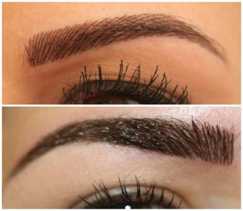 Illustration of The Right Eye Is Smaller Until The Eyebrows Are Furrowed?