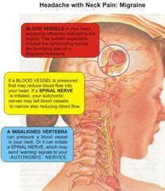 Illustration of Overcoming Prolonged Thyroid Gland Disease Accompanied By Neck Pain?
