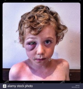 Illustration of Swelling In The Eyes Of A 5 Year Old Child When He Wakes Up?
