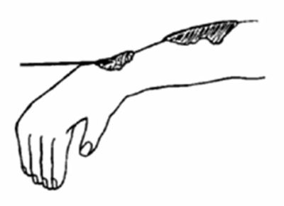 Illustration of Fever, Weakness, Headache, And The Appearance Of Lumps During Leprosy Treatment?