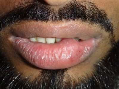 Illustration of Swelling To Pus On The Upper Lip?