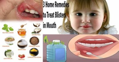 Illustration of How To Cure Tongue And Lips Affected By Floor Cleaner?