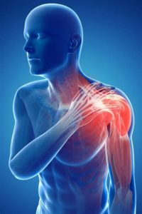 Illustration of Pain And Soreness From The Shoulders To The Forearms And Tingling Palms?