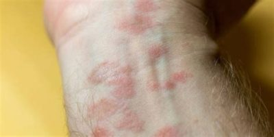 Illustration of Causes Of Itching On The Skin Of The Arms And Protruding Pores?