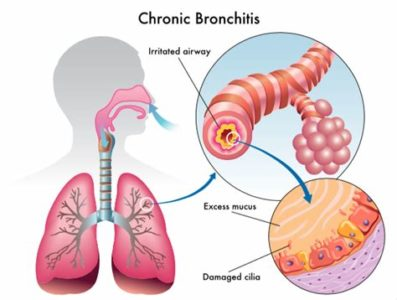 Illustration of Causes And Treatment Of Bronchitis And COPD?