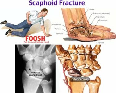Illustration of Hand Bone Pain From Falling?