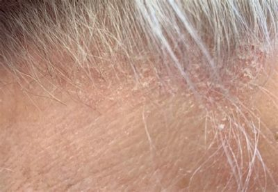 Illustration of Scalp That Looks Scaly And Red?