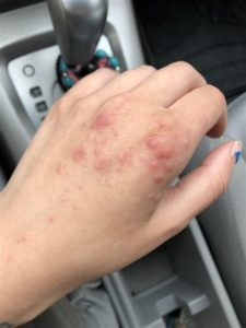 Illustration of Bumps On Hands Disappear?