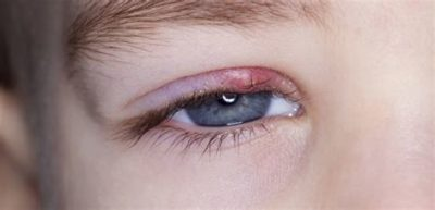 Illustration of How To Get Rid Of A Stye On The Eyelid?