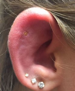 Illustration of Ears Are Painful And Swollen And Discharge?