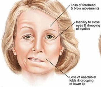Illustration of Effects Of Using Braces When Suffering From Bell's Palsy?