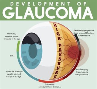 Illustration of Effects Of Untreated Glaucoma?