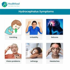 Illustration of Symptoms Experienced By Adults When Stricken With Hydrocephalus?