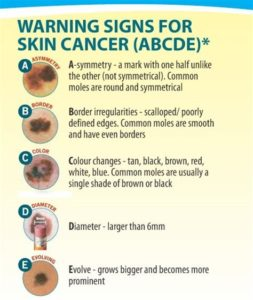 Illustration of Signs And Symptoms Of Skin Cancer Due To Mercury Use?