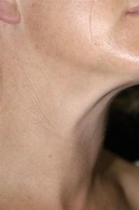 Illustration of Causes Of Swelling Of The Thyroid Gland?