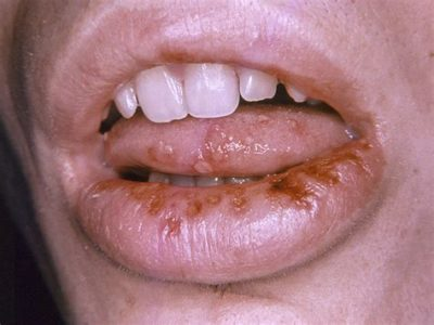 Illustration of Overcoming Sore Throat And Burning Tongue?