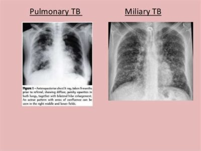 Illustration of Results Of Sputum Examination In Tuberculosis Patients?