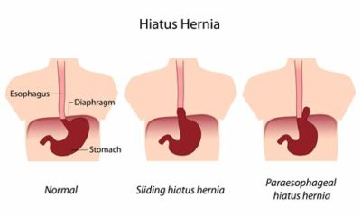 Illustration of Fasting For Hiatal Hernia Sufferers?