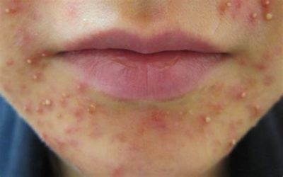 Illustration of Pussy Bumps On The Chin With Peeling Skin?