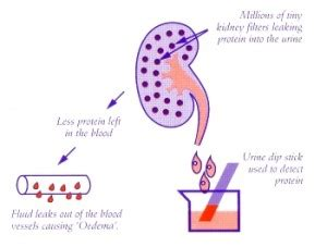 Illustration of Is It Possible To Change The Dose Of Nephrotic Syndrome Medicine Without Doctor's Instructions?