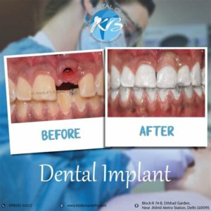 Illustration of The Impact Of KB Implants Is Not Taken Completely?
