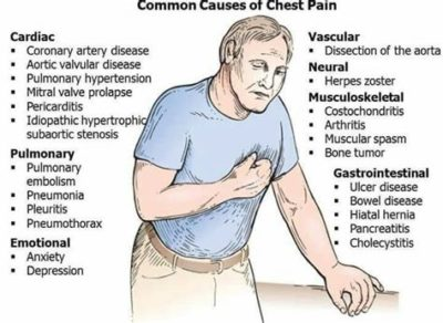 Illustration of Causes Of A Racing Heart And Chest Pain?