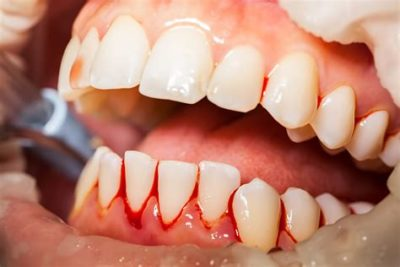Illustration of How To Deal With Swollen And Bleeding Gums Due To Braces?