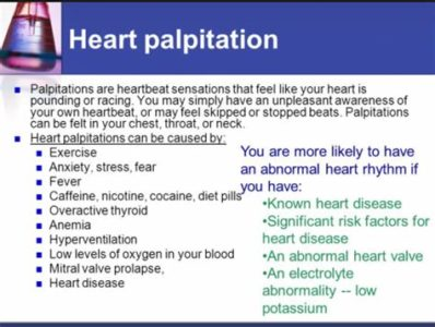 Illustration of What Is The Cure For Heart Palpitations Dizziness, Nausea And Sweating?