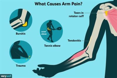 Illustration of Causes Of Pain In The Right Arm?