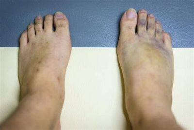 Illustration of The Ankle Is Shifted Until It Is Swollen And Blue?